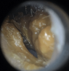Ear Wax Removal Procedure ear canal before